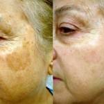 manchas y pigmentación