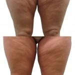 tratamiento de liposucción