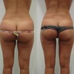 caso de liposucción
