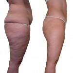 tratamiento liposucción