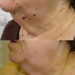 tratamiento con láser en cuello