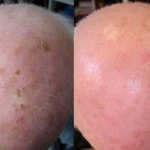 tratamiento con láser en cuero cabelludo