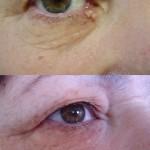 tratamiento con láser en ojo