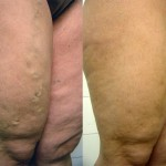 tratamiento de varices 6